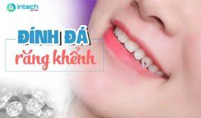 Đính đá răng khểnh và những điều bạn cần biết