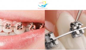 Vì sao phương pháp niềng răng mắc cài kim loại vẫn được nhiều lựa chọn