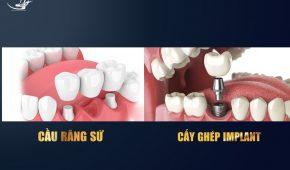 Mất răng nên chọn làm cầu răng hay cấy implant?