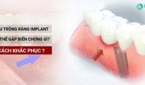 Biến chứng sau khi cấy implant, bật mí cách khắc phục