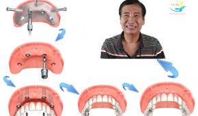 Chi phí trồng răng nguyên hàm bao nhiêu tiền?