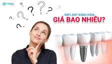 Trồng răng hàm số 6 giá bao nhiêu, phương pháp nào phù hợp nhất?