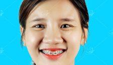 Khuyến mại niềng răng – chương trình tỏa sáng nụ cười Việt.