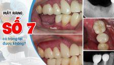 Mất răng số 7 có trồng lại được không? Bằng phương pháp nào?