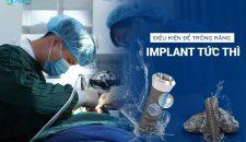 Điều kiện răng như thế nào có thể trồng răng implant tức thì?