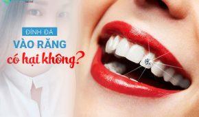 Đính đá vào răng có hại không, cách chăm sóc răng sau khi đính đá