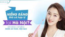 Niềng răng giá cả hợp lý tại Hà Nội? Bật mí địa chỉ niềng răng an toàn, hiệu quả