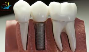 Trồng răng implant giá rẻ nhất liệu có đảm bảo an toàn?