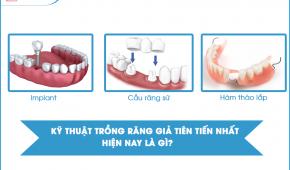 Kỹ thuật trồng răng tiên tiến nhất hiện nay là gì?