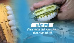 Bật mí cách nhận biết nha khoa nào làm răng sứ tốt