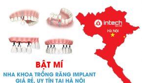 Bật mí nha khoa trồng răng implant giá rẻ, uy tín tại Hà Nội