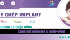 Chương trình khuyến mại cấy ghép Implant lớn nhất năm 2018