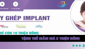 Chương trình khuyến mại cấy ghép Implant lớn nhất năm 2020