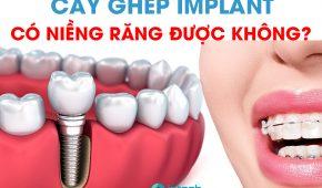 Cấy ghép implant có niềng răng được không?
