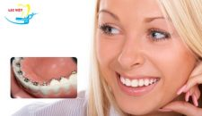 Niềng răng mặt trong (Niềng răng mặt lưỡi, niềng răng bí mật)