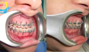Niềng răng móm giá bao nhiêu – Bảng giá tất cả các loại niềng