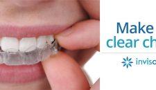 Niềng răng không mắc cài invisalign, niềng răng thẩm mỹ hoàn hảo nhất