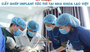 Kỹ thuật cấy ghép implant tức thì tại nha khoa Lạc Việt
