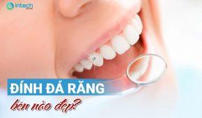 Đính đá răng bên nào đẹp?