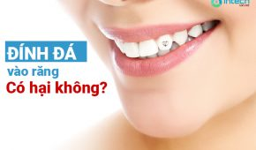 Đính đá vào răng có hại không?