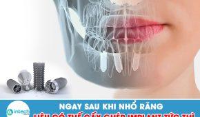 Ngay sau khi nhổ răng liệu có thế cấy ghép implant tức thì không?