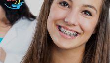 Niềng răng hô và những vấn đề được quan tâm nhất