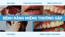 Bệnh răng miệng thường gặp, cách khắc phục hiệu quả