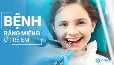 Bệnh răng miệng ở trẻ em thường gặp và phương pháp khắc phục