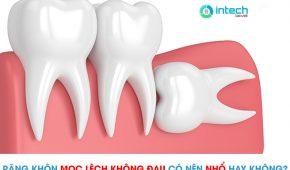 Răng khôn mọc lêch nhưng không đau có nên nhổ hay không?