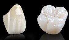 Thực sự thì độ bền của răng sứ titan có như mọi người vẫn nghĩ