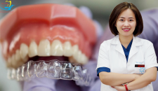 Cùng chuyên gia giải đáp vấn đề niềng răng trong suốt có đau không?