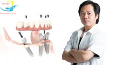 Tìm hiểu phương pháp cấy ghép implant toàn hàm dưới góc nhìn chuyên gia