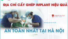 Bật mí bảng giá trồng implant và cơ sở trồng răng uy tín, chất lượng tại Hà Nội