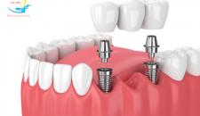 Liệu cấy ghép implant giá rẻ có thực sự an toàn?