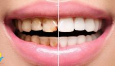 Có nên dán răng sứ không? Lắng nghe tư vấn từ chuyên gia