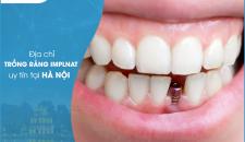 Địa chỉ trồng răng implant an toàn, uy tín tại Hà Nội?
