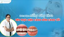 Kinh nghiệm niềng răng thưa – nên thực hiện càng sớm càng tốt