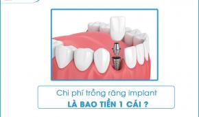 Chi phí trồng răng implant hiện nay là bao nhiêu tiền một cái?