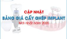 Cập nhập bảng giá trồng implant mới nhất 2020