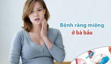 Bệnh răng miệng ở bà bầu