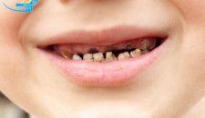 Bé bị đau răng phải làm sao?