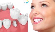 Bọc răng sứ là gì? Có hại cho răng không?