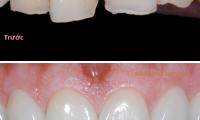 Bọc răng sứ có tốt không? bọc răng sứ ở đâu tốt nhất Hà Nội?