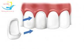 Bọc răng sứ có tốt không? Địa chỉ bọc răng sứ an toàn