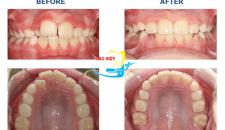 Nẹp răng hô vẩu, chen chúc bằng công nghệ 3D tiên tiến