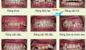 Tổng hợp tất cả các phương pháp niềng răng hô móm lệch lạc