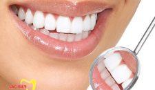 Làm bọc răng sứ loại nào đẹp nhất?