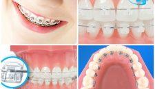 Phương pháp niềng răng mắc cài nào thì tối ưu nhất?