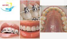 Cấu tạo và tính năng các loại mắc cài niềng răng hiện nay