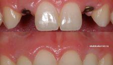 Tổng hợp các phương pháp trồng răng giả